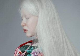 асель альбинос